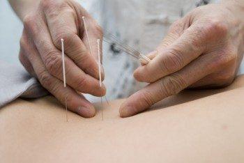 La acupuntura: una buena alternativa natural