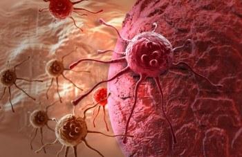El Dr. Hamer y sus teorías sobre el cáncer